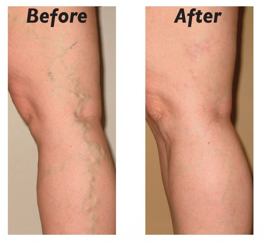 Natural Remedies For Veins